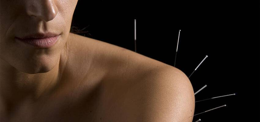 Acupuncture and You: Shoulder Pain Treatment