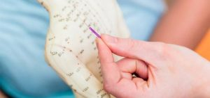 Fibromyalgia And Cfs Acupuncture