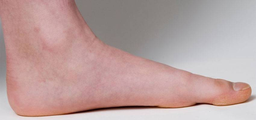 Flat Feet and Over-Pronation
