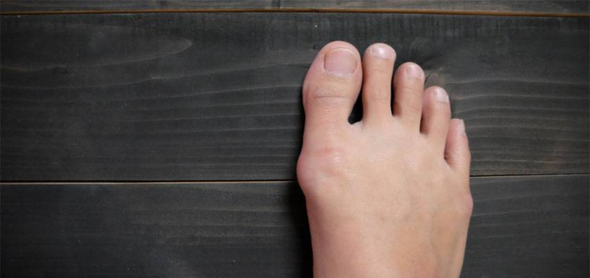 Prevent Bunion Issue