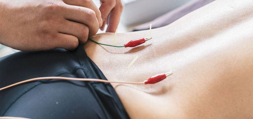 Electroacupuncture Treatment Pain Injuries
