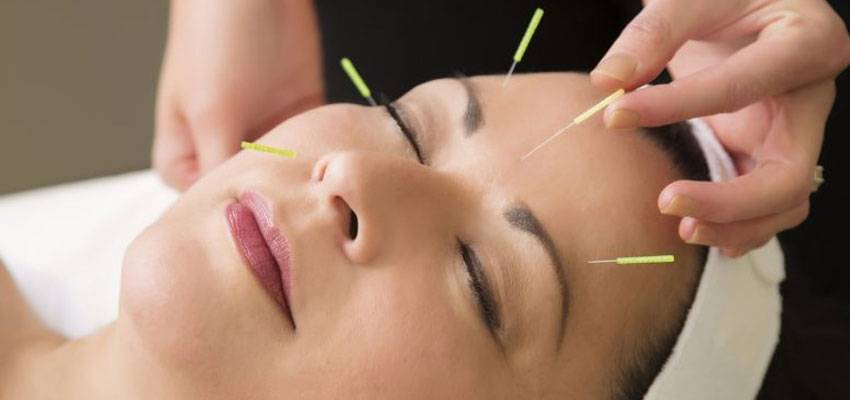 Benefits Using Acupuncture Reduce Anxiety