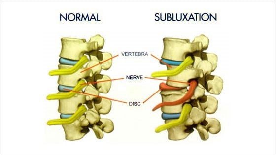 normal vs Chiropractic Care in Barrie: Are Spinal Adjustments Safe?