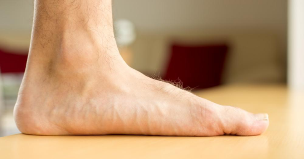 flat feet The Ultimate Guide to Foot Orthotics
