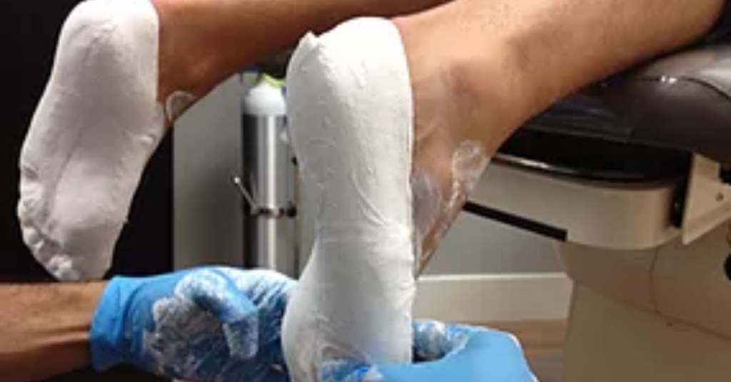plaster cast The Ultimate Guide to Foot Orthotics
