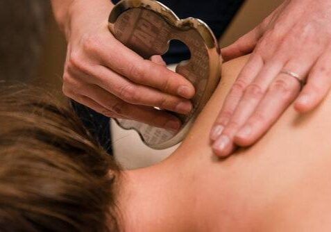 acupuncture in barrie
